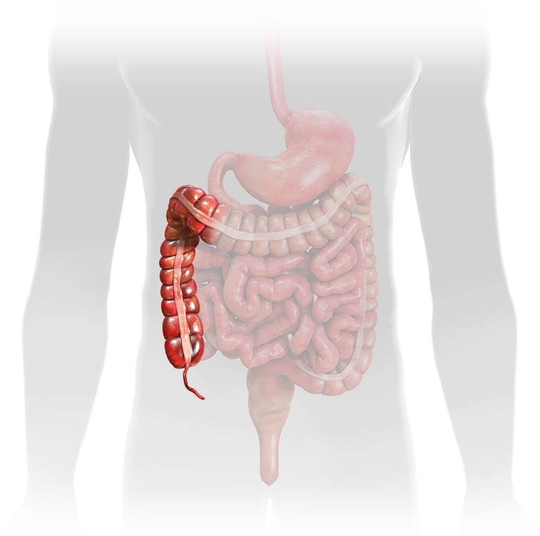 Ascending Colon