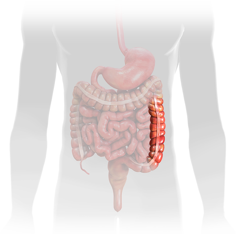 Descending Colon